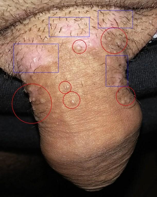 papillomas virus femme)