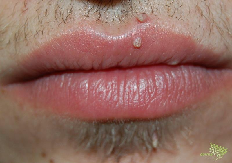 nemi szemölcsök ajkak száj