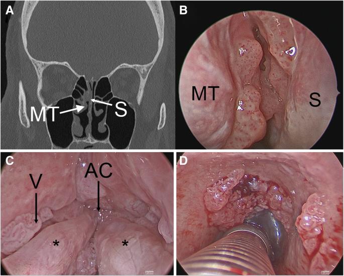 Dr. Diag - Papilloma sinus paranasalis