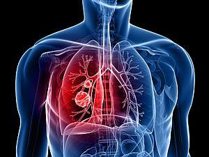 kiújult tüdőrák
