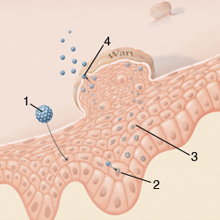 sebgyógyulás a condyloma eltávolítása után