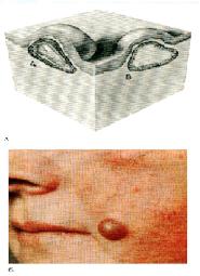 aki a nyaki szemölcsöket kezelte fekete juglans paraziták