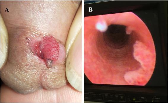 condyloma urethritis
