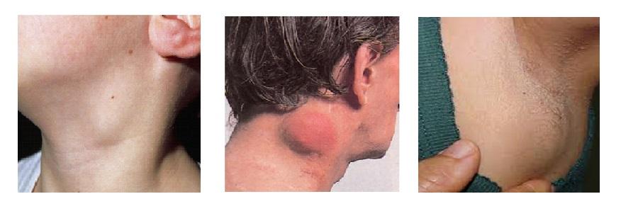 A Hodgkin-kór és a non-Hodgkin limfómák fő különbségei | gajaliget.hu
