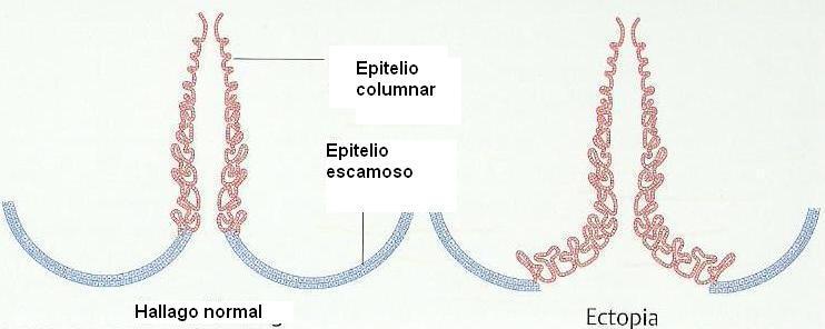 papilloma vírus veneto régiója