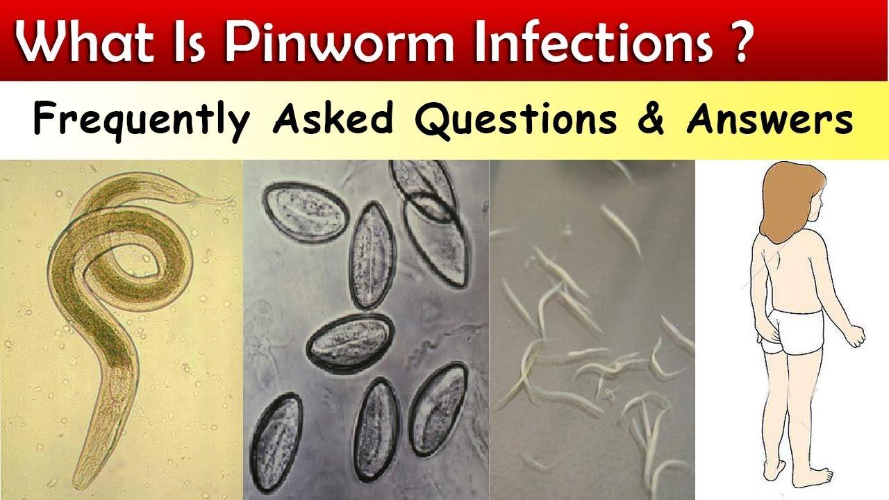 hogyan lehet eltávolítani a pinworm tojásokat