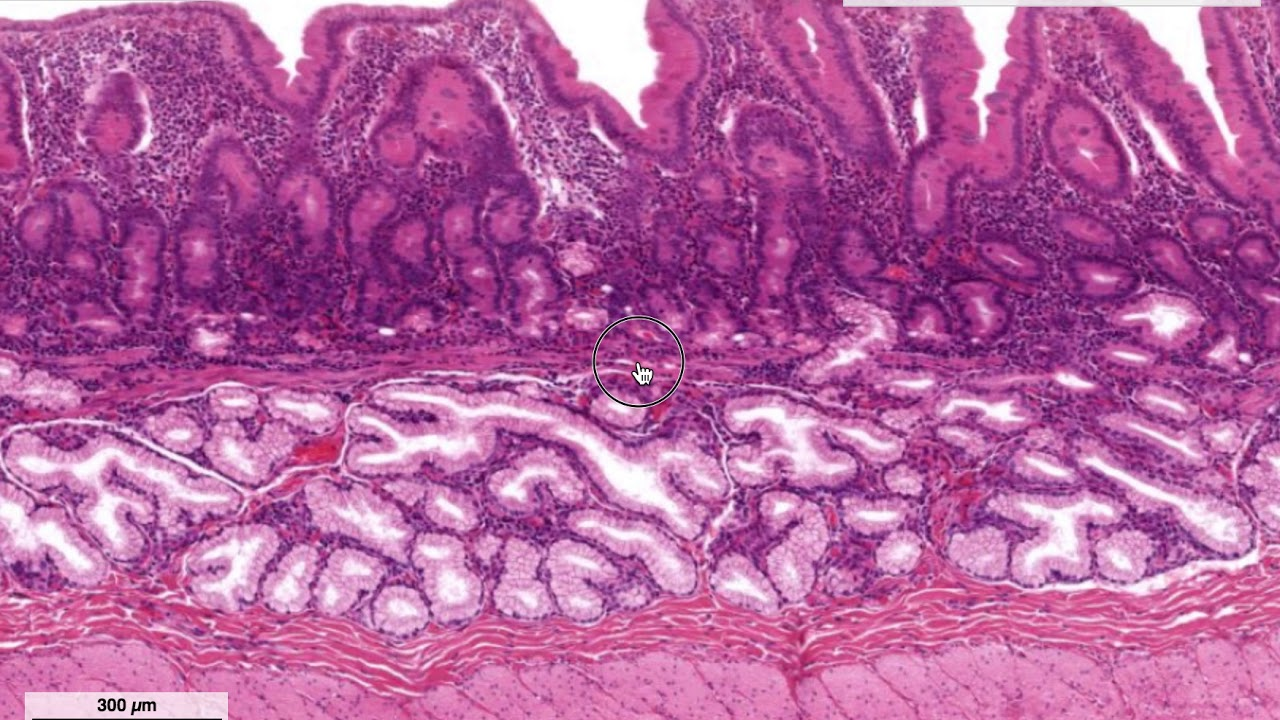 a duodenum giardiájának hisztopatológiája)
