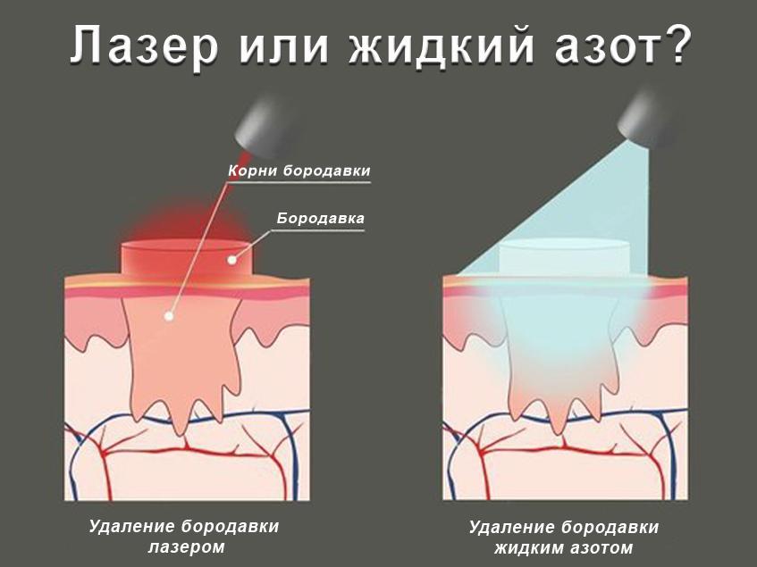 szemölcs a bal lábon icd 10)