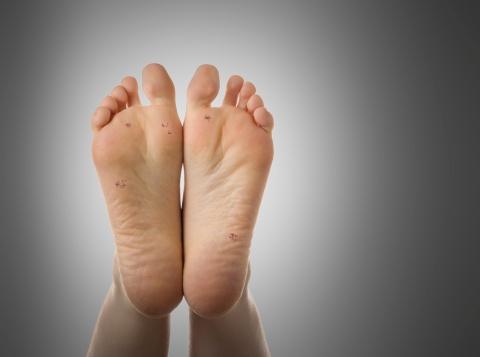 szemölcs kezelés láb)