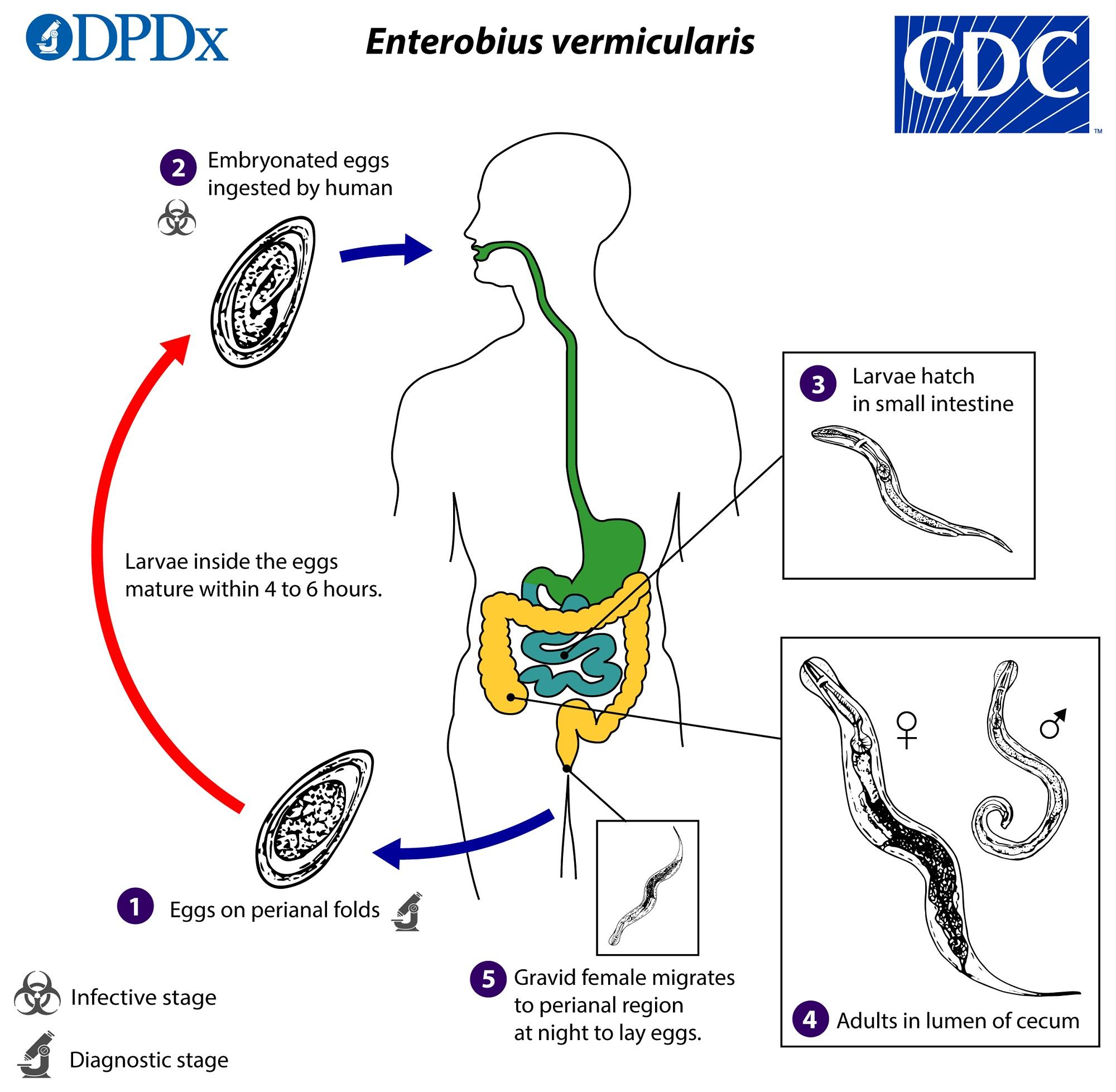 Enterobiasis mennyi ideig