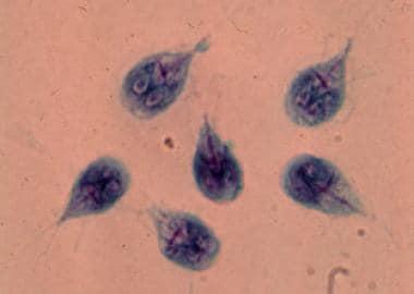Giardia férgek gyógyszer. Mi a giardiasis?