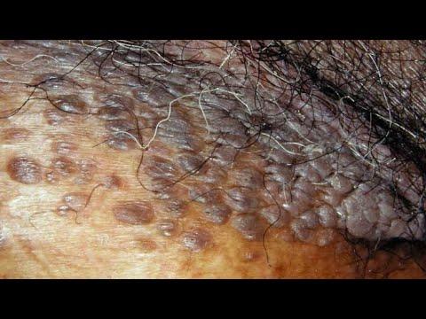 hogy néz ki a széles condyloma emberi papillomavírus fertőzés vs genitális szemölcsök