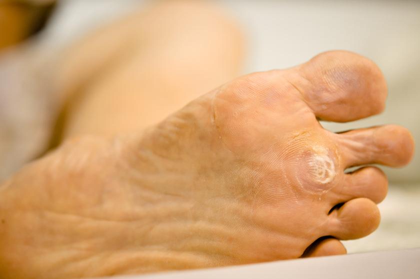 papilloma kialakulása a helminthiasis standard kezelése