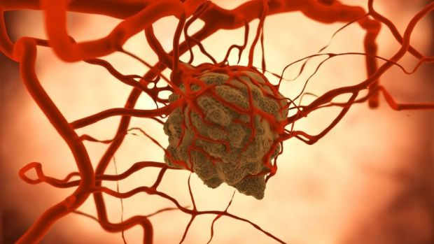 Fej-nyaki daganat, IV-es stádium (jelige: ircsi)