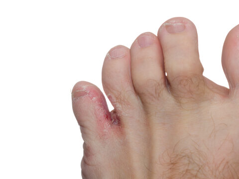 lábujjak és lábujjak közötti sebek