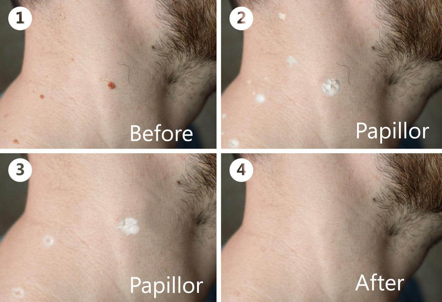 Gyakori és veszélyes a humán papillóma vírus (HPV) - HáziPatika