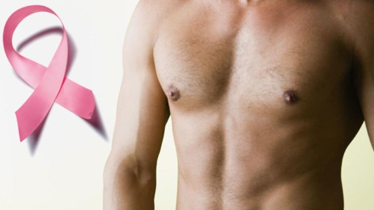 A férfi mellrák kialakulása és jellemzői | gajaliget.hu