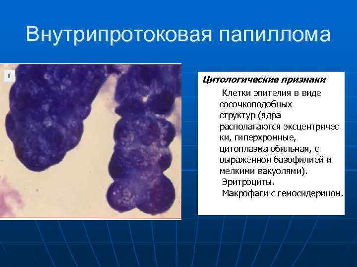 atipikus intraductalis papilloma