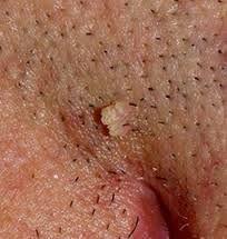 penyakit hpv kelamin)