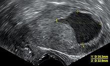 endometrium rák ct