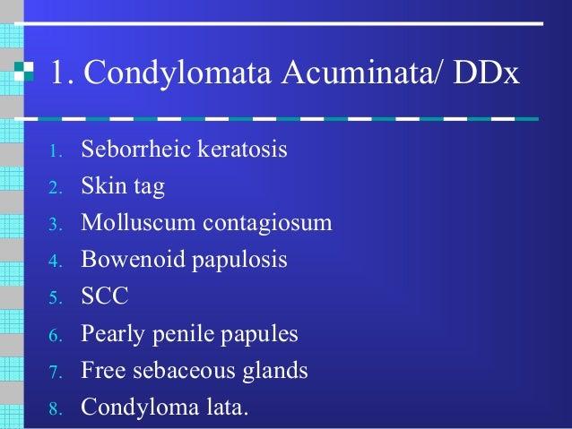 condyloma acuminata ddx)
