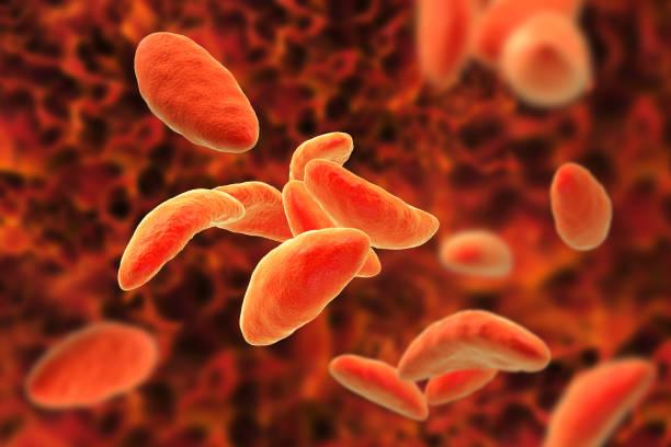 Fascioliasis helminth jellegzetes forrása a fertőzés patogenezisében,