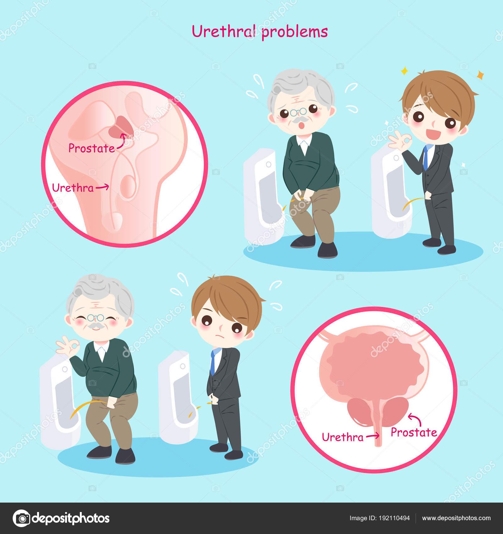 a condyloma urethra tünetei)