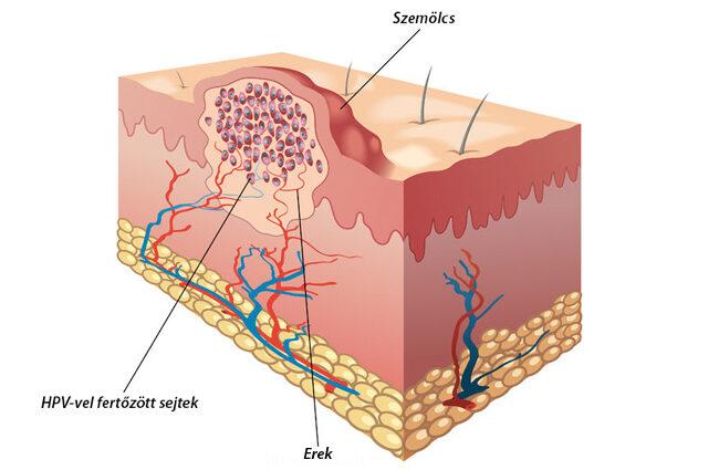 a HPV-t okozó rák okozza a szemölcsöket)