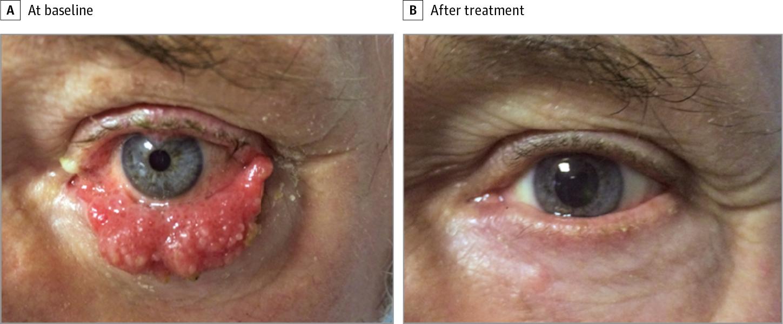 Hogyan végezzen műtét a prosztata adenoma eltávolítására