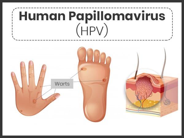 a papilloma nyelv patológiájának körvonalai