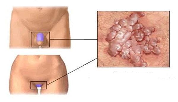 a condyloma tüneteinek kezelése