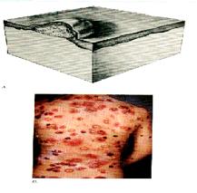 aki a nyaki szemölcsöket kezelte pinwormok az év csecsemőiben
