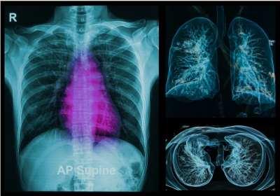 kiújult tüdőrák)