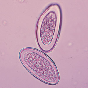 enterobius vermicularis grammfolt