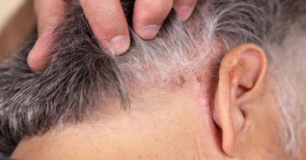 csípő hasi fájdalom prosztatarák kemoterápia