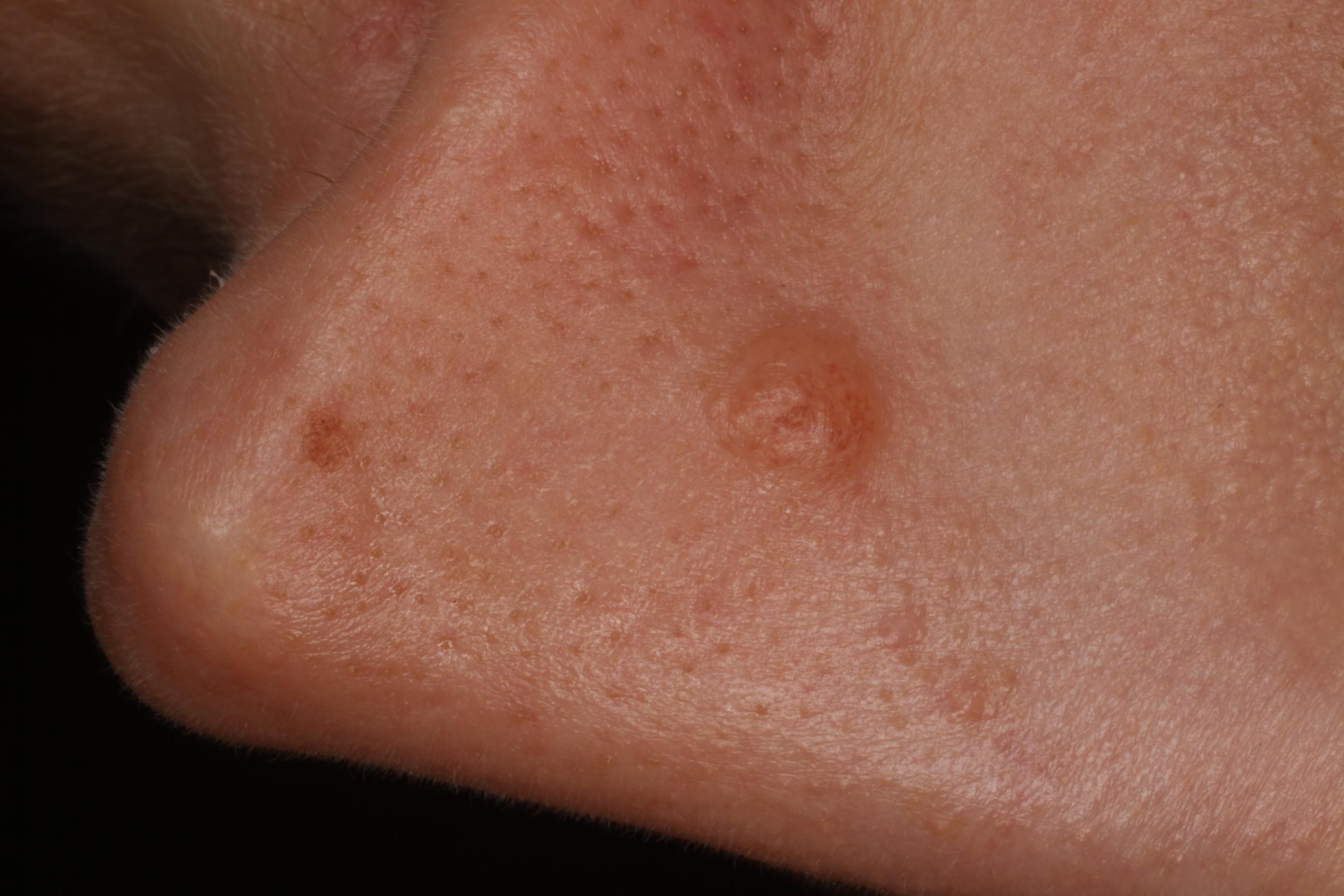 bőrgyógyászat növényi szemölcs bőrrák az arcán