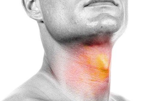 a hpv által kiváltott fej- és nyaki rák)