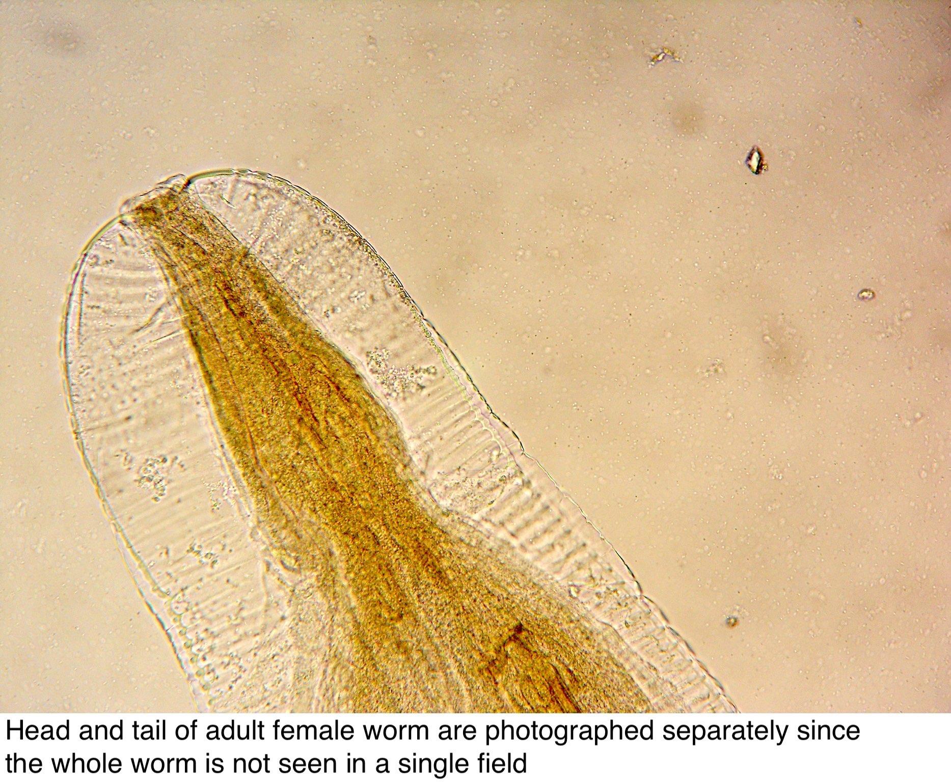 enterobius vermicularis földrajzi eloszlás)