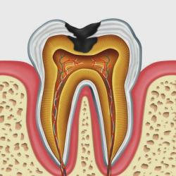 Lelki eredetű lehet-e a fogbetegségek okai – fogfájás, fogínygyulladás