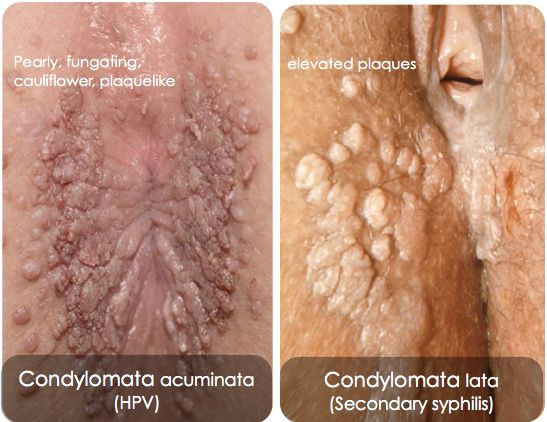 condyloma acuminatum rák kockázata