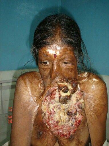 condyloma tumor)
