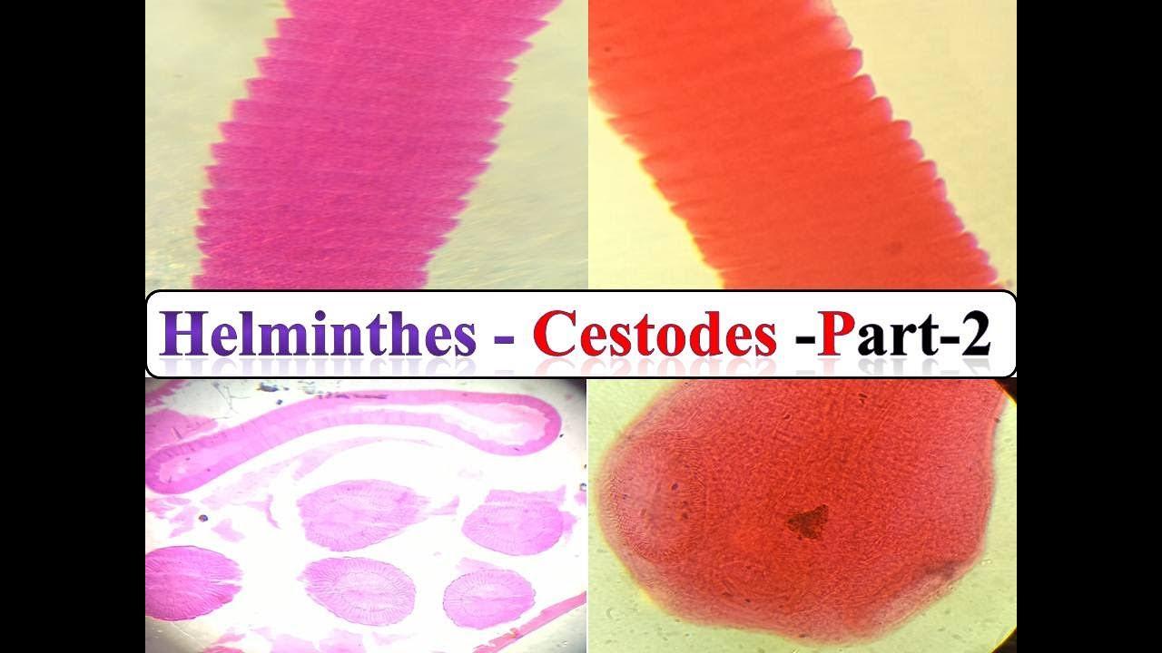 pinworm helminthiasisos kezelés gyermekgyógyszer férgek ellen