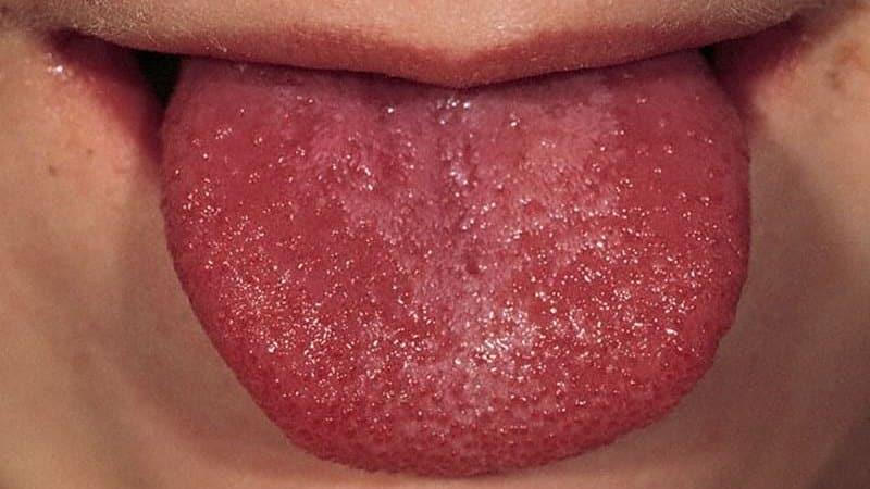 rák nyelvcsúcsa