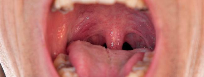 hpv gyógyszer krém paraziták embernél kiütések