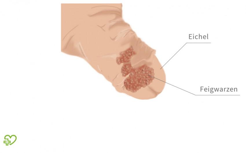 Hpv szemolcs hogy nez ki, Giardia parazita macska - Cum ne infectam cu giardia?