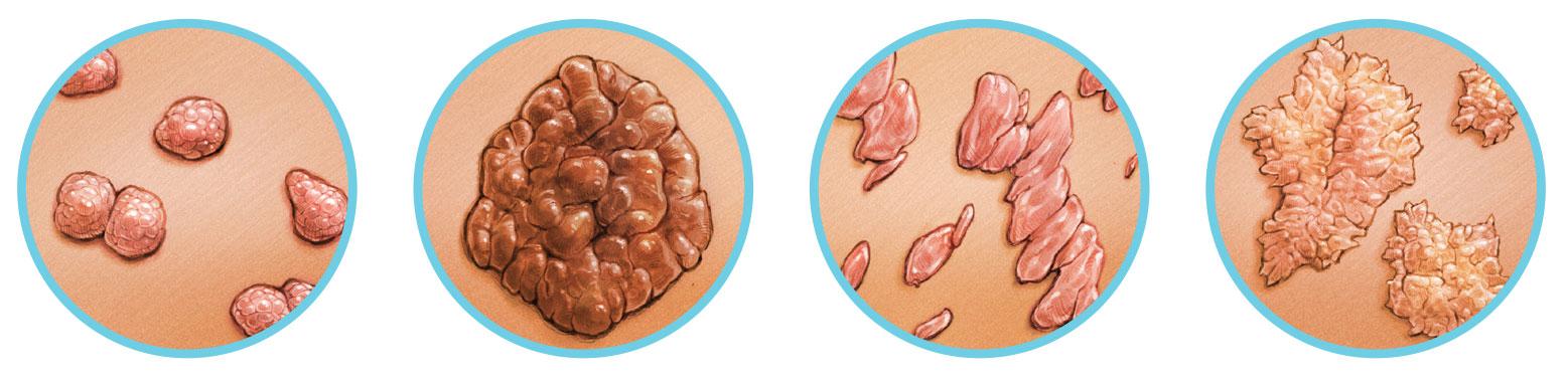 papilloma vírus elleni oltás como