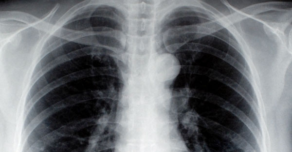 tüdőrák láz)