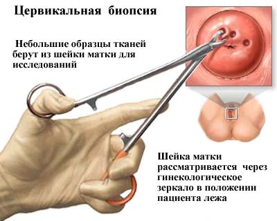 papillomavírus tabletta oxyuris vermicularis shqip