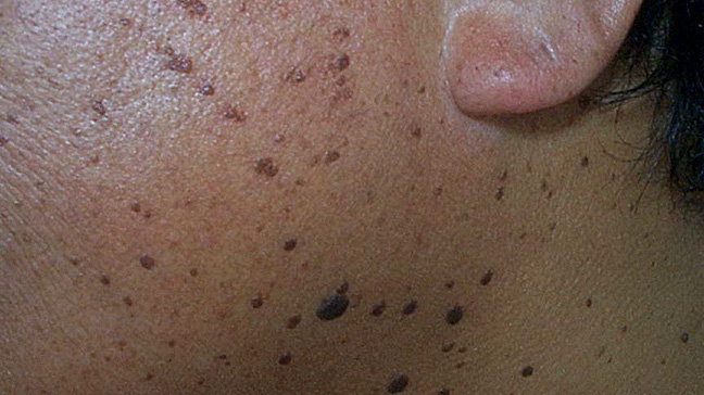 fekete papillomatosis dermatosis