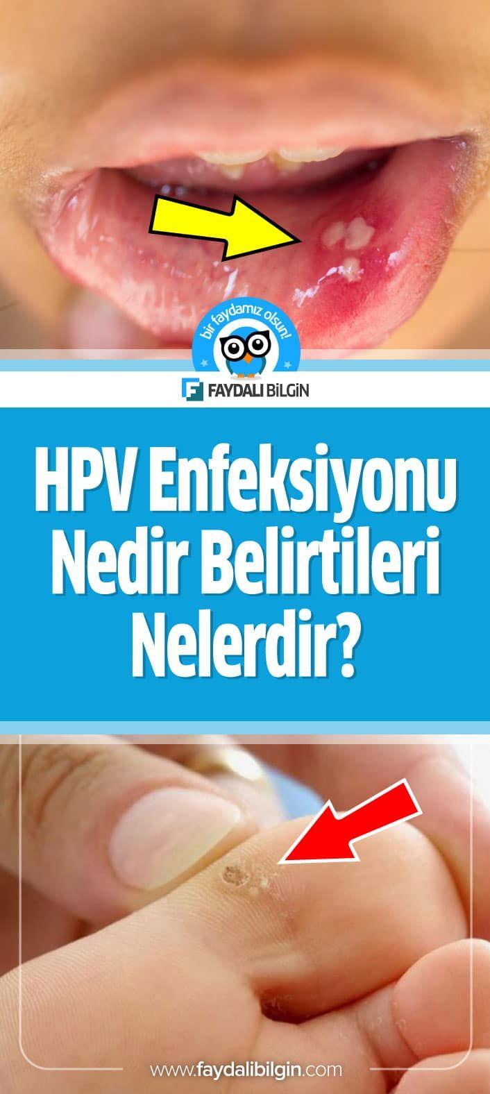 hpv szűrés nedir orvosilag hatékony antihelmint emberekben